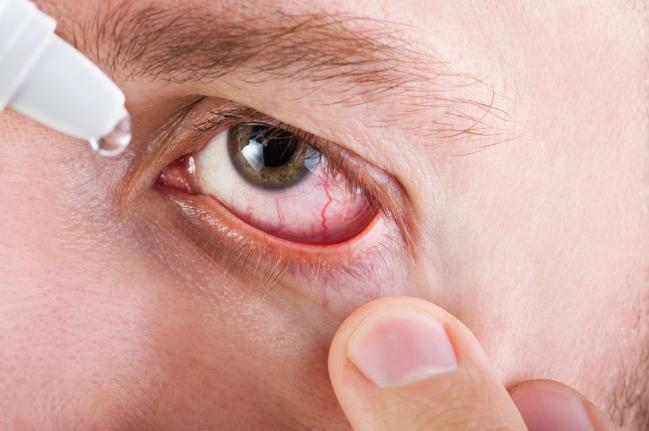 Dry Eye Linked to Chronic pain & Fibromyalgia syndromes. How Many in you have such symptoms?